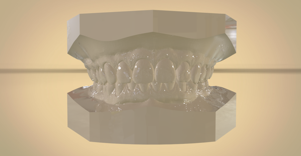 Digital Orthodontic Study Models with Virtual Bases 3D Print 191767
