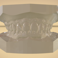 Small Digital Orthodontic Study Models with Virtual Bases 3D Printing 191767