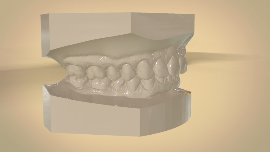 Digital Orthodontic Study Models with Virtual Bases 3D Print 191768