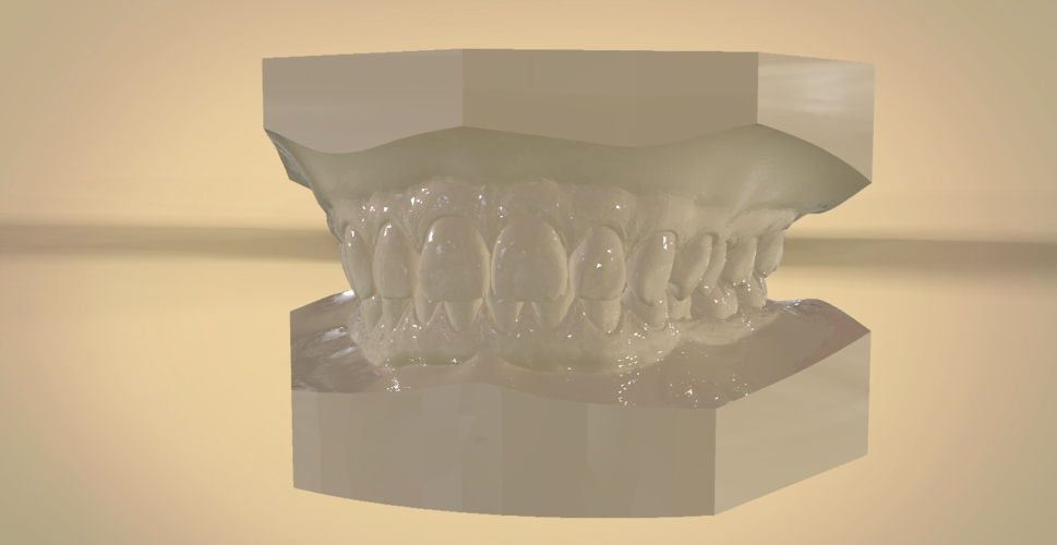 Digital Orthodontic Study Models with Virtual Bases 3D Print 191769