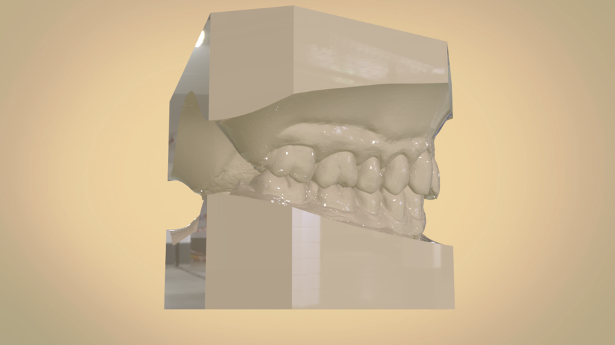 Digital Orthodontic Study Models with Virtual Bases 3D Print 191772