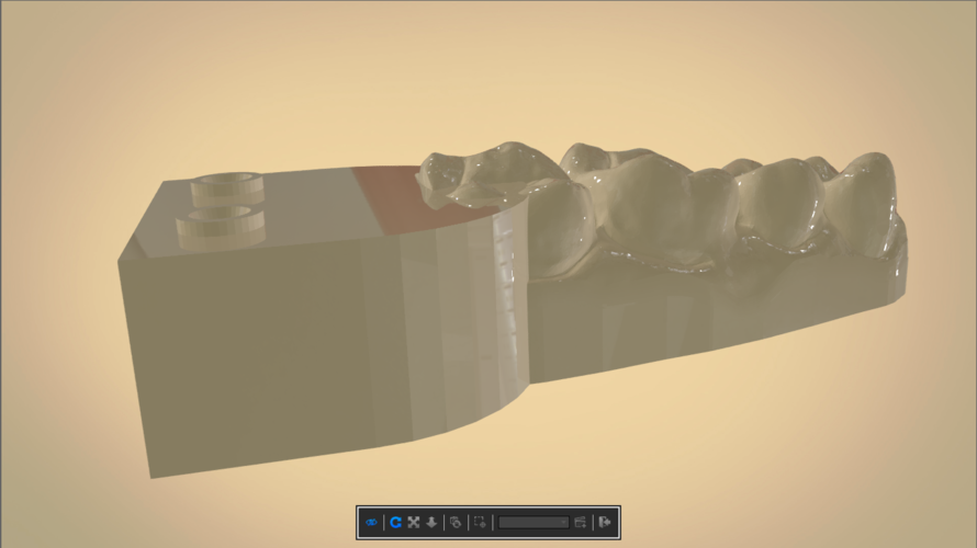 Digital Dental Quadrant Model  3D Print 192174