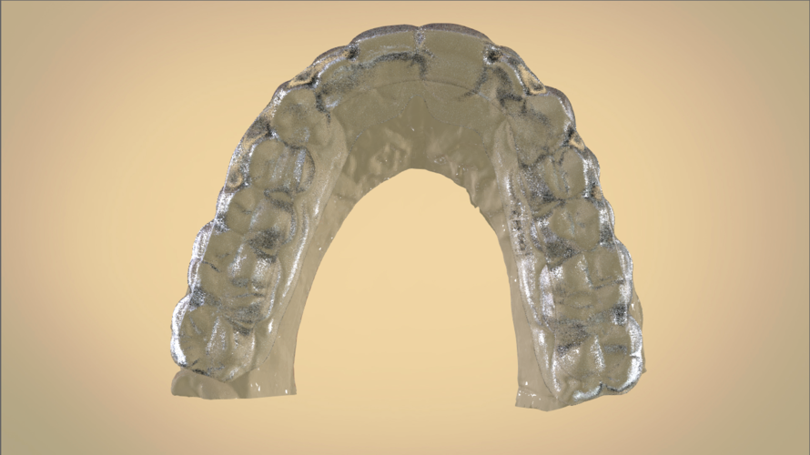 Digital Dental Bite splint 3D Print 192332