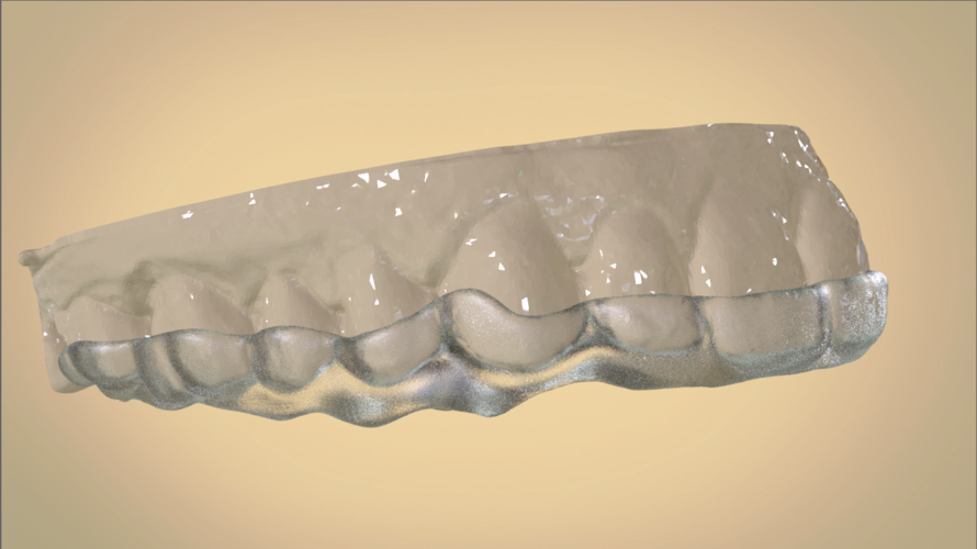 Digital Dental Bite splint 3D Print 192334