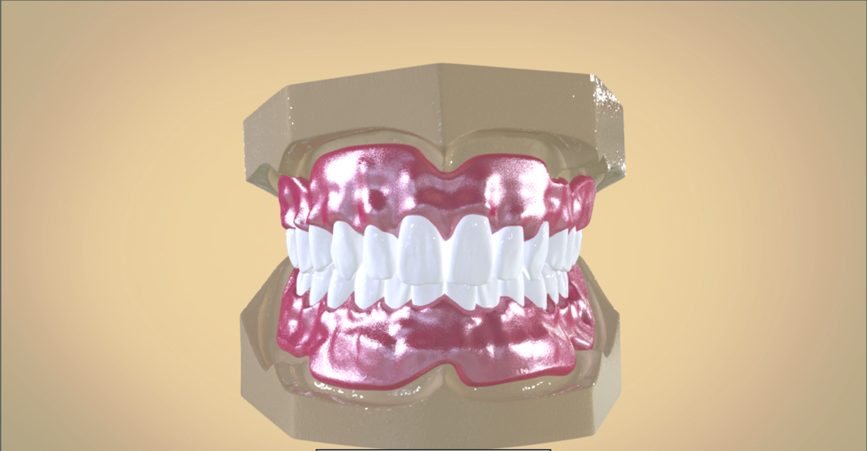 Digital Full Dentures 3D Print 192456