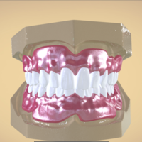 Small Digital Full Dentures 3D Printing 192456
