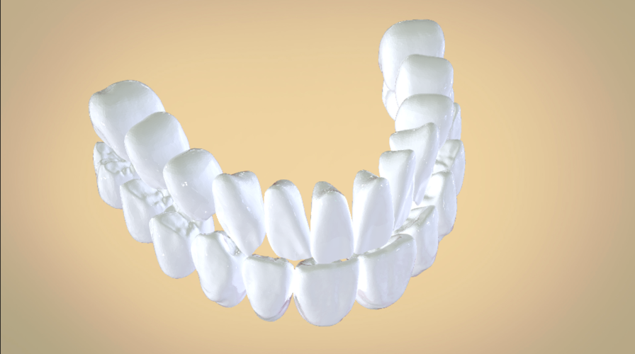 Digital Full Dentures 3D Print 192457