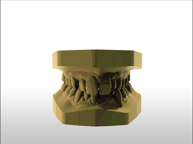 ​Digital Study Orthodontic Models with Archman Virtual Bases 3D Print 193986