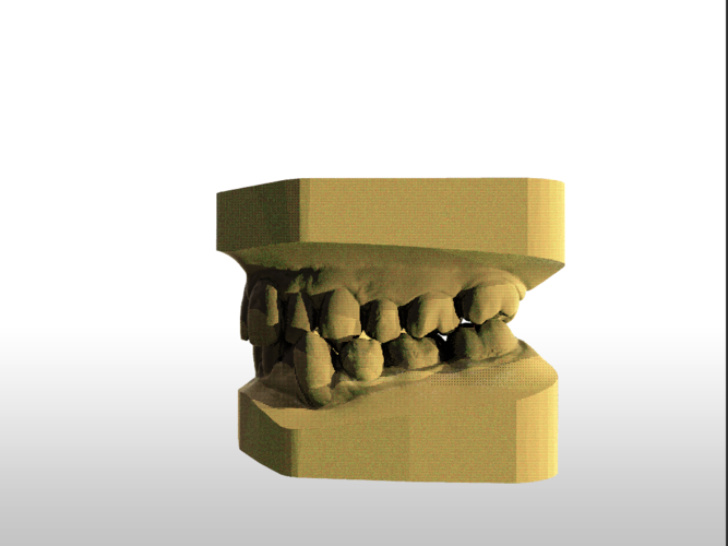​Digital Study Orthodontic Models with Archman Virtual Bases 3D Print 193987