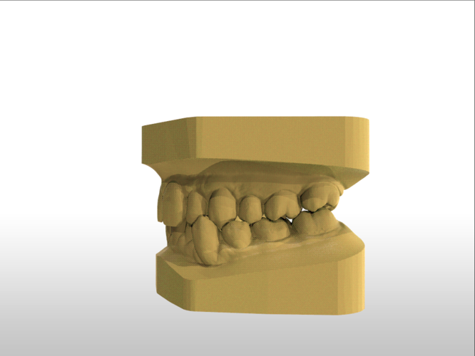 ​Digital Study Orthodontic Models with Archman Virtual Bases 3D Print 193988