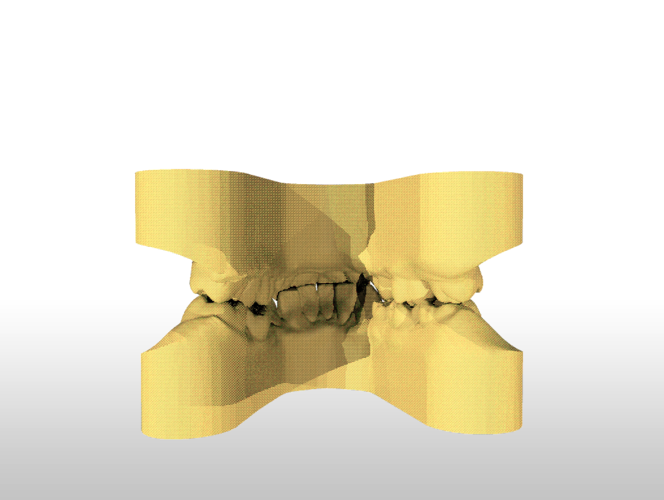 ​Digital Study Orthodontic Models with Archman Virtual Bases 3D Print 193989