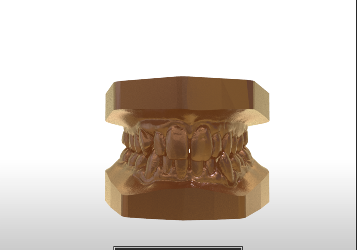 ​Digital Study Orthodontic Models with Archman Virtual Bases 3D Print 193990