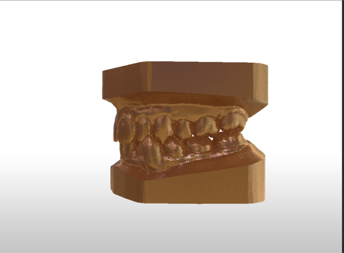 ​Digital Study Orthodontic Models with Archman Virtual Bases 3D Print 193991