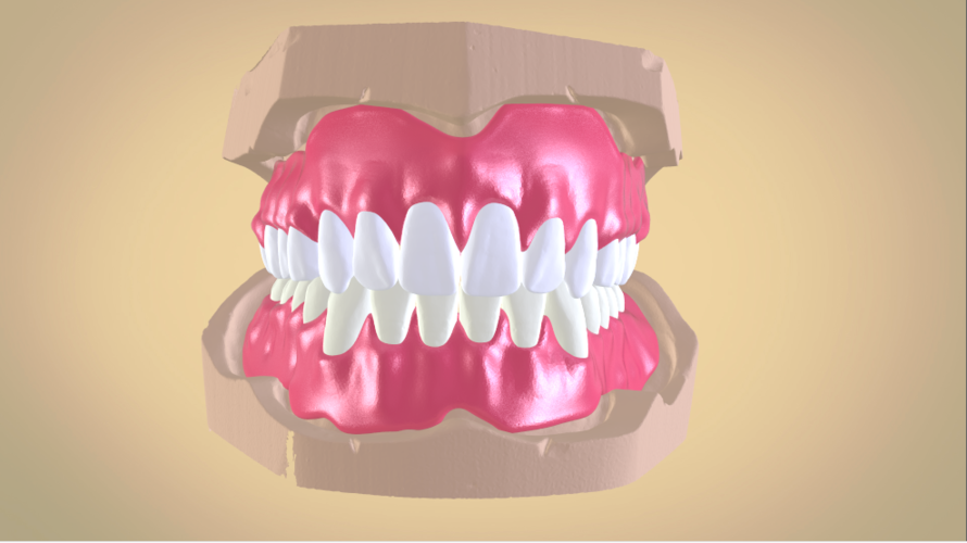 Full Dentures with Many Production Options 3D Print 195502