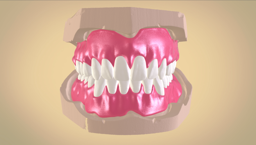 Full Dentures with Many Production Options 3D Print 195503