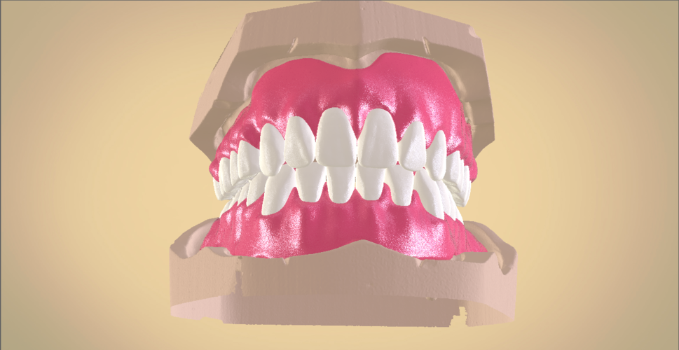 Full Dentures with Many Production Options 3D Print 195505