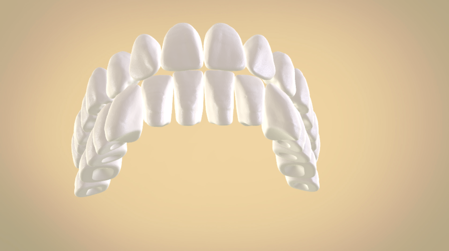 Full Dentures with Many Production Options 3D Print 195511