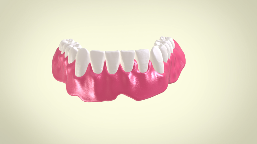 Full Dentures with Many Production Options 3D Print 195513