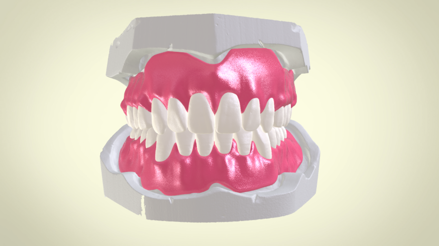 Full Dentures with Many Production Options 3D Print 195515