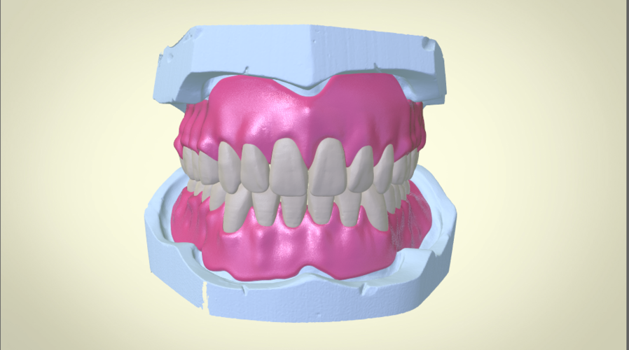 Full Dentures with Many Production Options 3D Print 195516