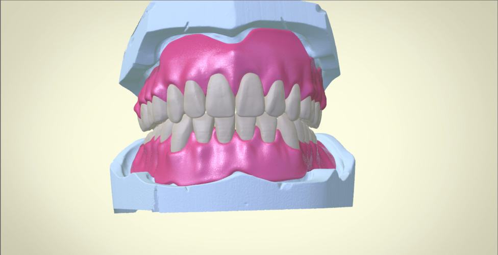 Full Dentures with Many Production Options 3D Print 195518