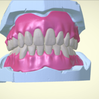 Small Full Dentures with Many Production Options 3D Printing 195518