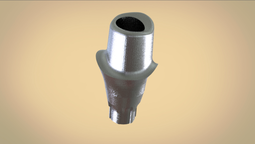Digital Custom Screw Retained Abutment  3D Print 205251
