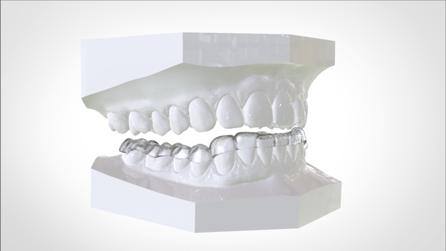 Digital Mandibular Nightguard 3D Print 207180