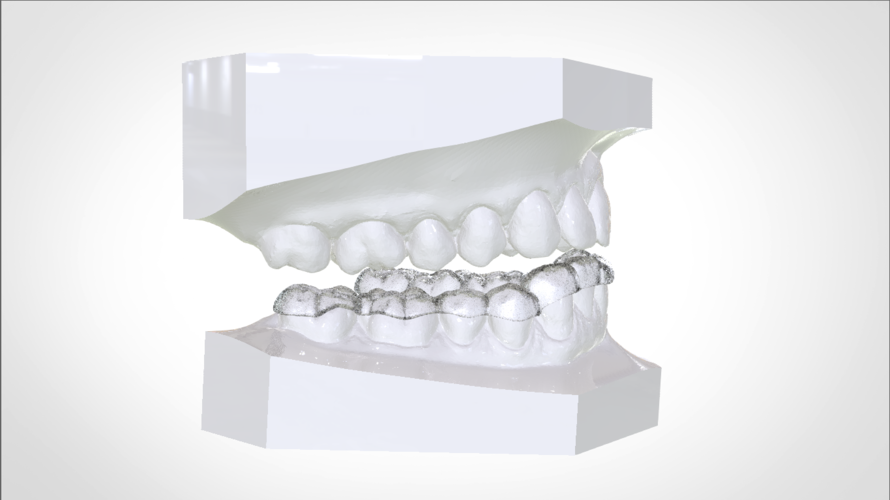 Digital Mandibular Nightguard 3D Print 207181