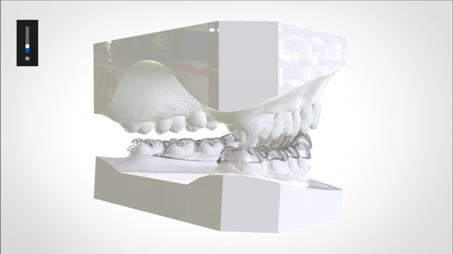 Digital Mandibular Nightguard 3D Print 207182