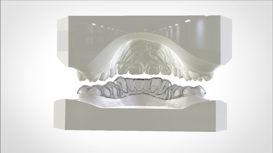Digital Mandibular Nightguard 3D Print 207183