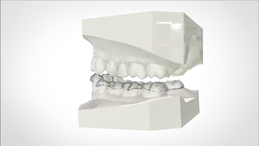 Digital Mandibular Nightguard 3D Print 207184