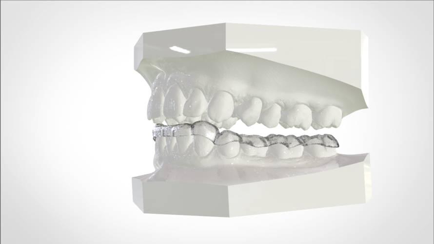 Digital Mandibular Nightguard 3D Print 207185