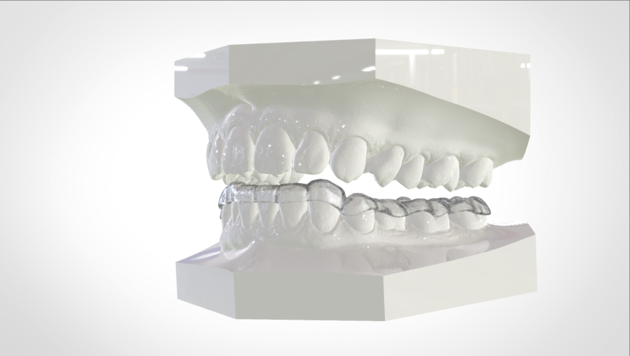 Digital Mandibular Nightguard 3D Print 207186