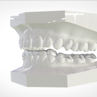 Small Digital Mandibular Nightguard 3D Printing 207186