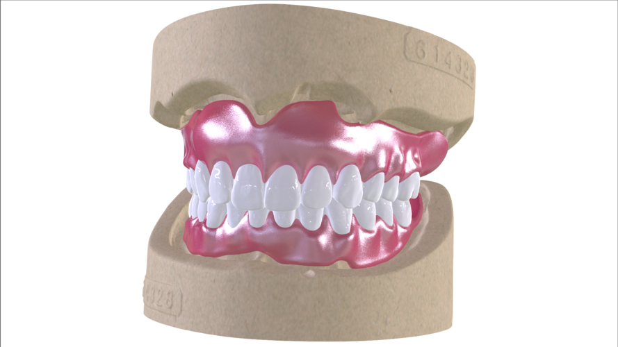 Digital Full Dentures with Combined Glue-in Teeth Arch 3D Print 221681