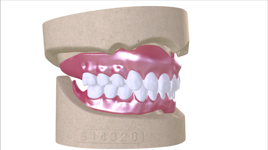 Digital Full Dentures with Combined Glue-in Teeth Arch 3D Print 221682