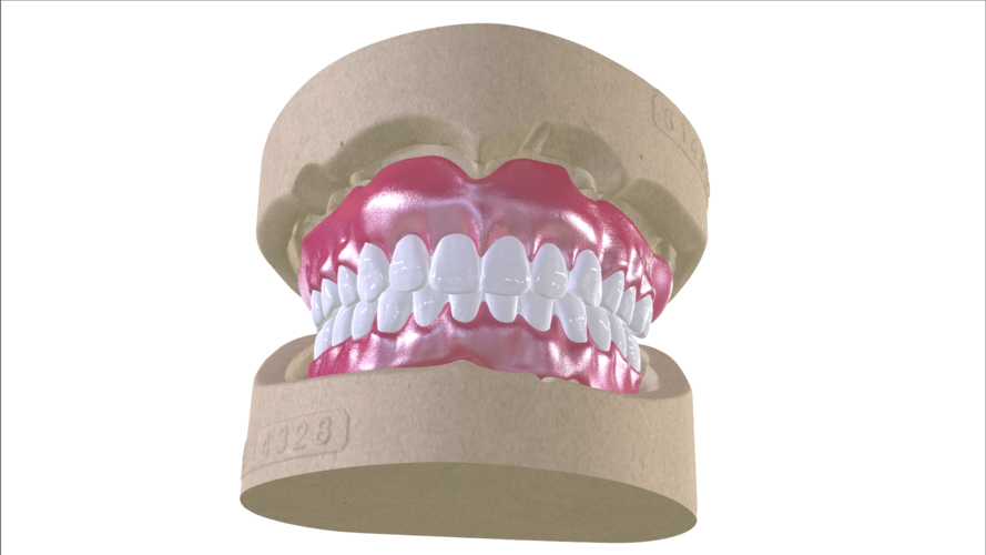 Digital Full Dentures with Combined Glue-in Teeth Arch 3D Print 221684