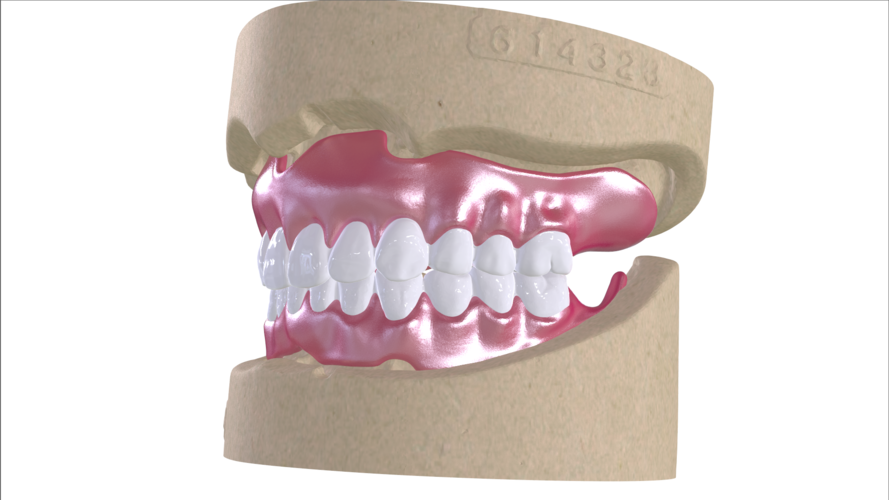 Digital Full Dentures with Combined Glue-in Teeth Arch 3D Print 221685