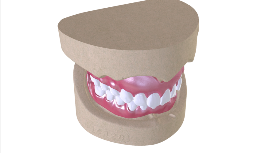 Digital Full Dentures with Combined Glue-in Teeth Arch 3D Print 221686