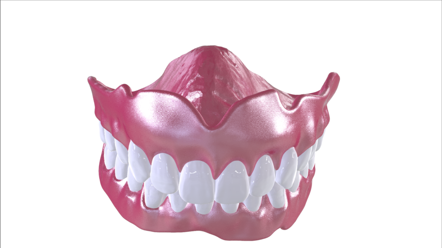 Digital Full Dentures with Combined Glue-in Teeth Arch 3D Print 221687