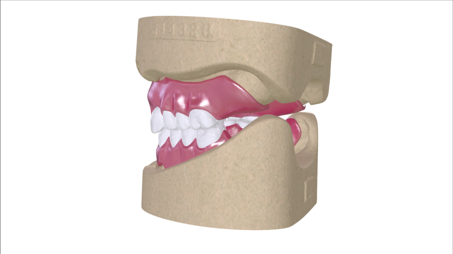 Digital Full Dentures with Combined Glue-in Teeth Arch 3D Print 221688