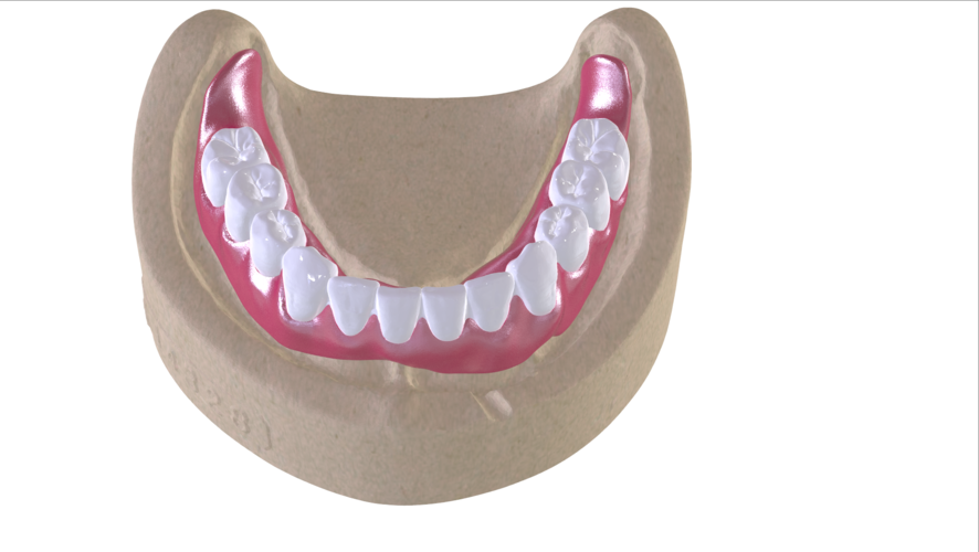 Digital Full Dentures with Combined Glue-in Teeth Arch 3D Print 221689