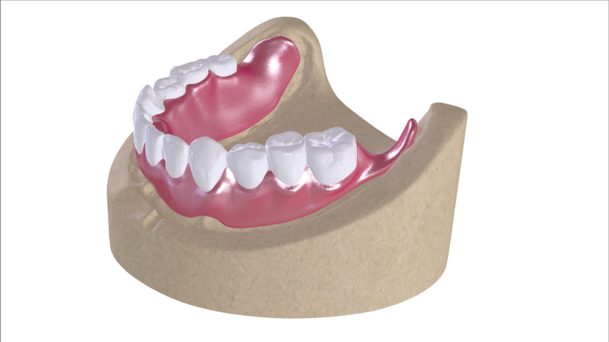 Digital Full Dentures with Combined Glue-in Teeth Arch 3D Print 221690