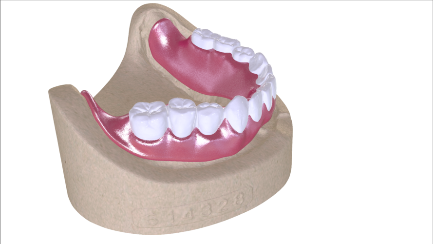 Digital Full Dentures with Combined Glue-in Teeth Arch 3D Print 221691