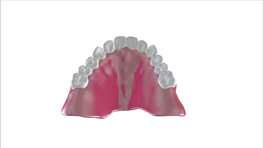 Digital Full Dentures with Combined Glue-in Teeth Arch 3D Print 221694