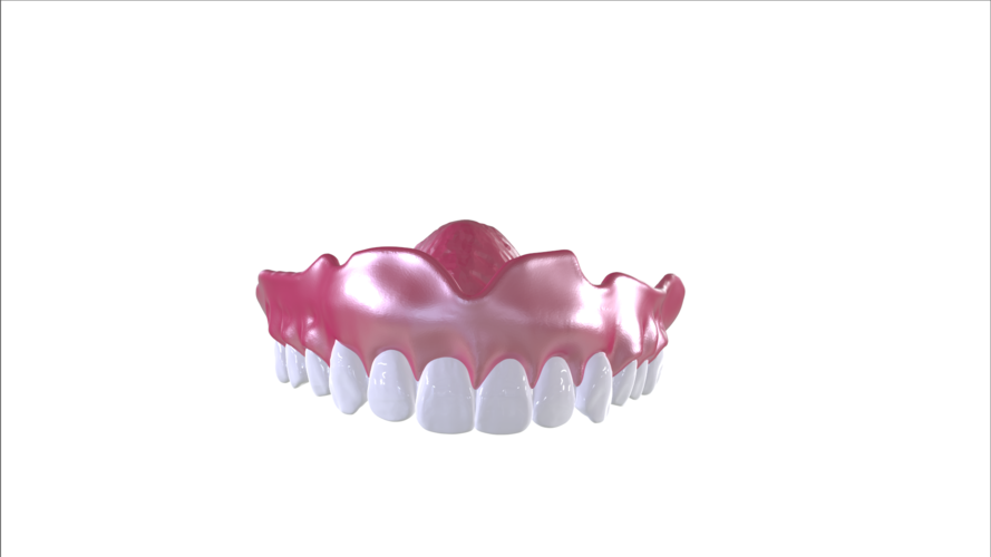 Digital Full Dentures with Combined Glue-in Teeth Arch 3D Print 221696