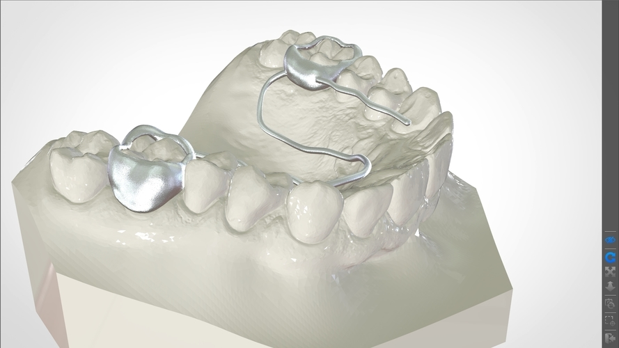 Digital W Arch Appliance (Orthodontic Appliance) 3D Print 223013