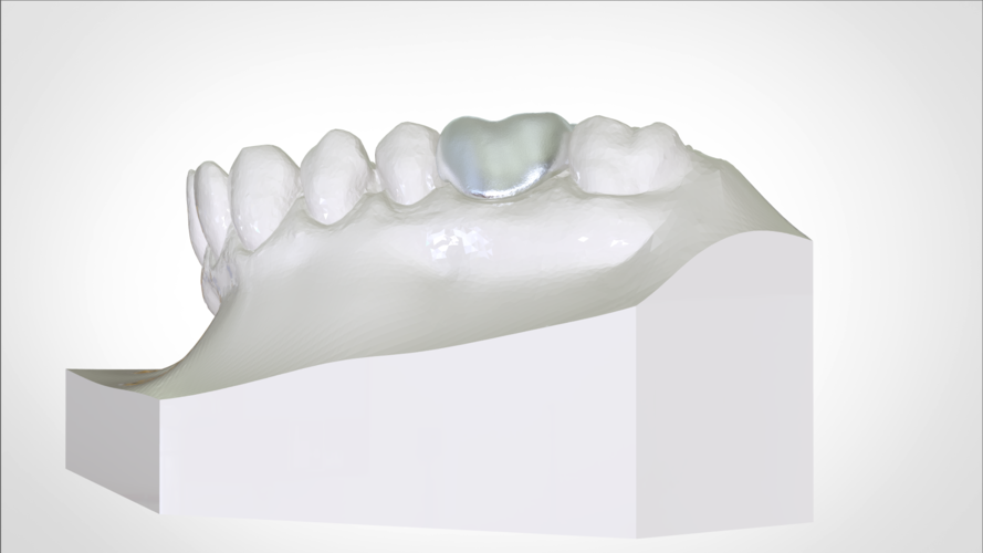 Digital W Arch Appliance (Orthodontic Appliance) 3D Print 223017