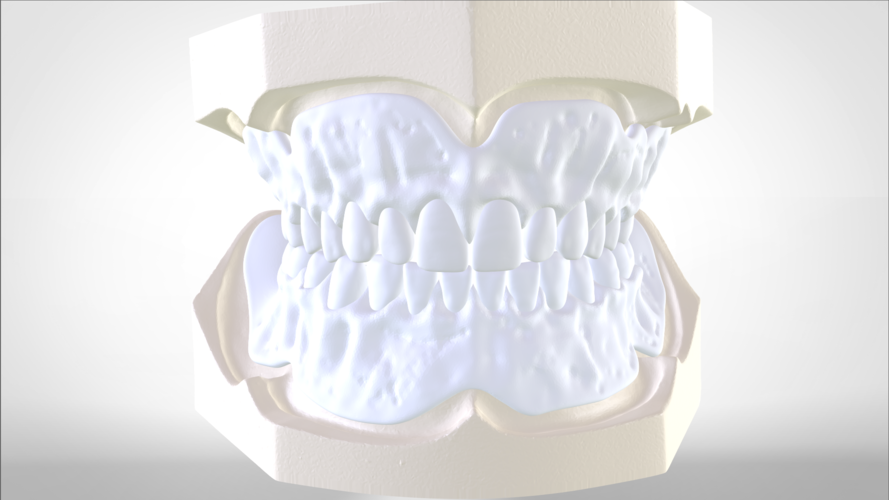Digital Try-in Full Dentures for Injection Molding  3D Print 223588